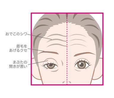 眼瞼下垂のイメージイラスト