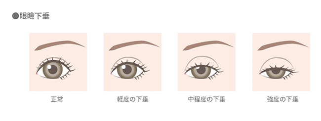 眼瞼下垂の程度のイメージイラスト