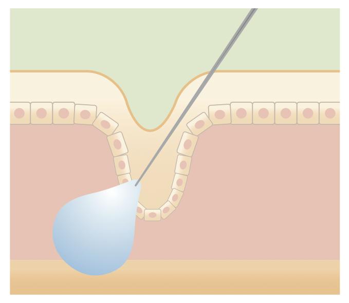 ヒアルロン酸注射図解2