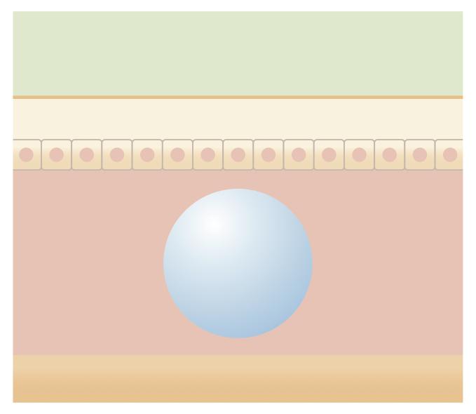 ヒアルロン酸注射図解3