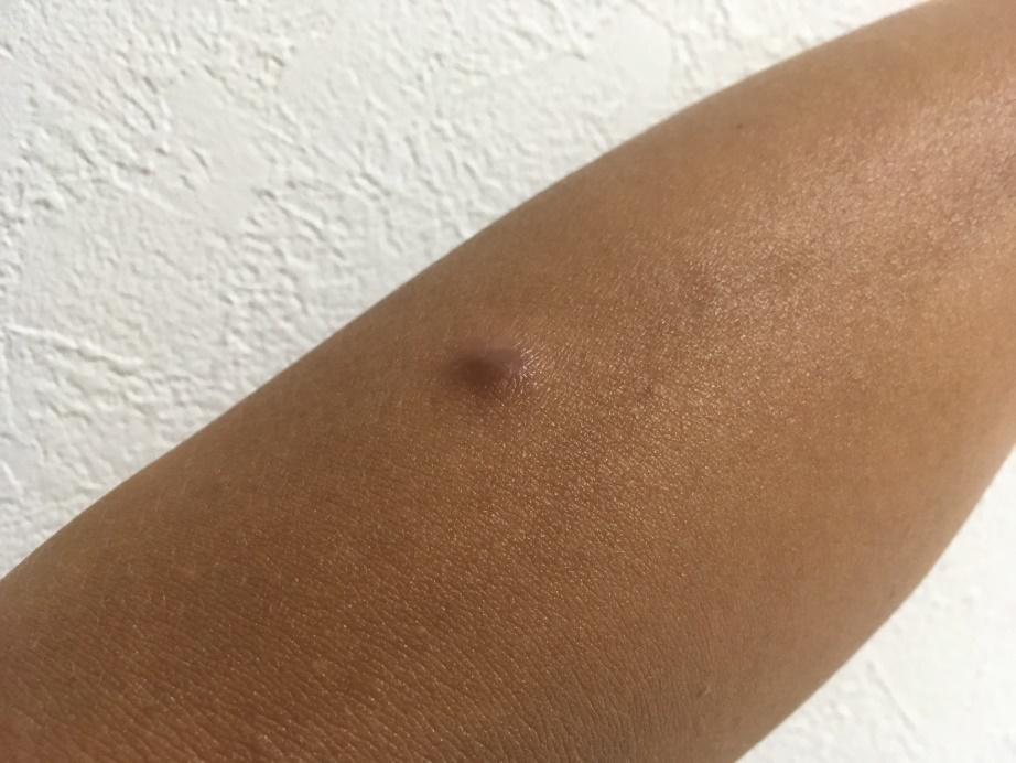 粉瘤の症例