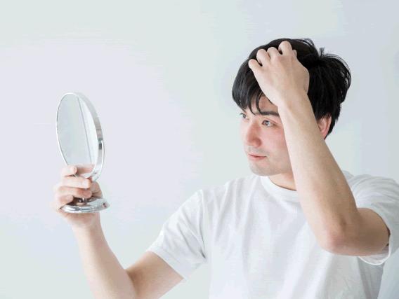 薄毛に悩む方のイメージ写真1